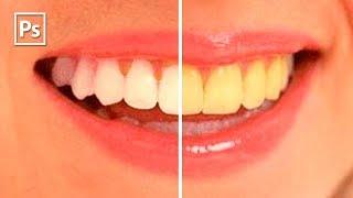 уроки фотошопа. Белые зубы