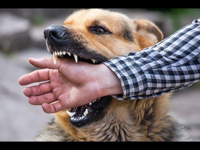 I GOT A NASTY DOG BITE
