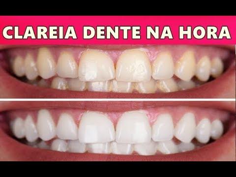 Dentes Brancos Na Hora Adeus Tartaro Mau Halito E Gengivite Youtube