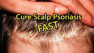 how to cure psoriasis permanently)