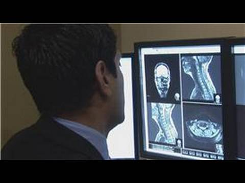 radiology : how to become a radiology technician - youtube, Sphenoid
