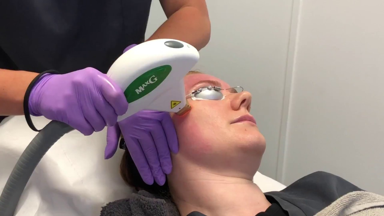 Cynosure Icon Maxg Ipl Treatment The Laser And Skin Clinic Youtube