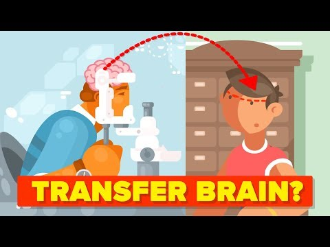 Why Can't We Transplant Brains?