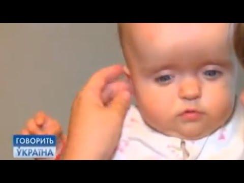 Дети-карлики: принять или ломать? (полный выпуск) | Говорить Україна