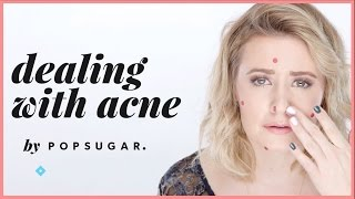 How to Feel Confident With Acne   Pretty Unfiltered