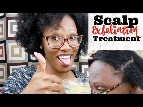 Scalp Exfoliation Treatment | Natural Hair