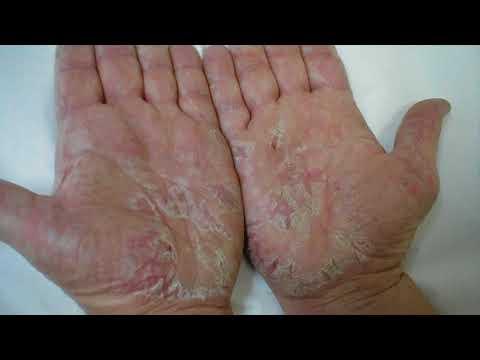 0 - Суха шкіра на обличчі — що робити?