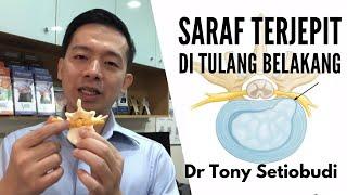 Jakarta, tvOnenews.com - Encok adalah jenis radang sendi yang sering menyebabkan nyeri hebat, pemben.