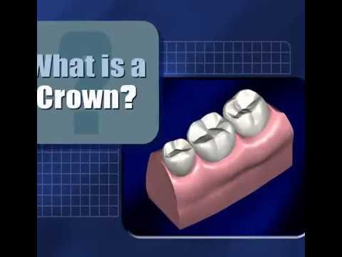 Dental Bridges, Crowns Albuquerque NM   Kneeland Dental Care