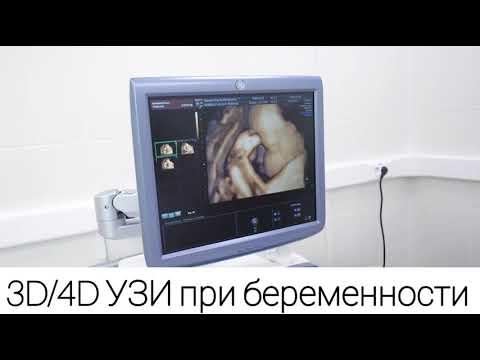 3D и 4D УЗИ при беременности