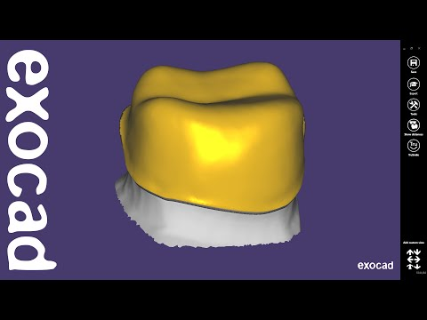 exocad Video Tutorial: Introduction to Basic Features  / Offset Coping Design