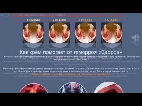 Острый геморрой - признаки, симптомы и лечение