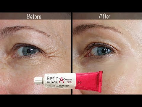 5 Year Retin A Update Before After For Wrinkles Anti Aging Youtube