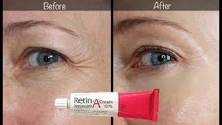5-Year Retin-A Update ~ Before & After for Wrinkles & Anti-Aging!