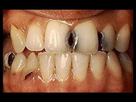 سبب تسوس الاسنان