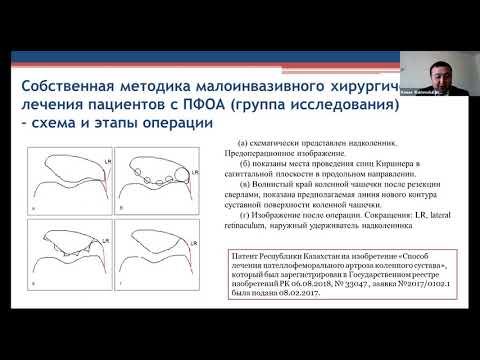 Акильжанов Кенес Рахметулловичтің қорғау туралы хабарландыруы