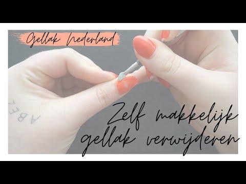 GELLAK VERWIJDEREN - Uitgebreide uitleg - Gellak Nederland