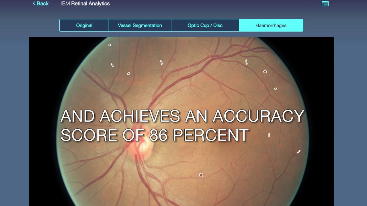 Spotting Diabetic Retinopathy with deep learning
