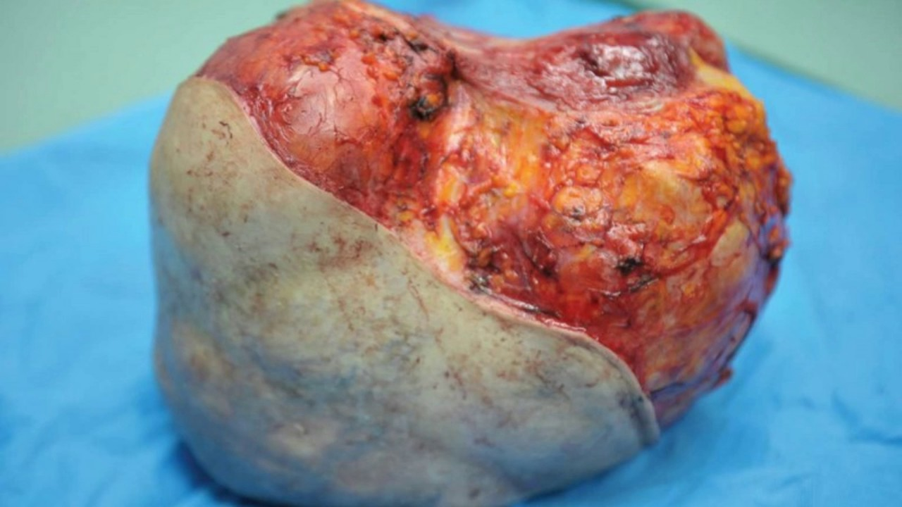 fibroid in the breast