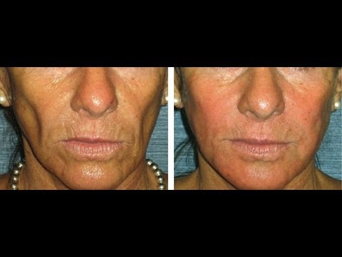 Radiesse facial filler globular filler opinions