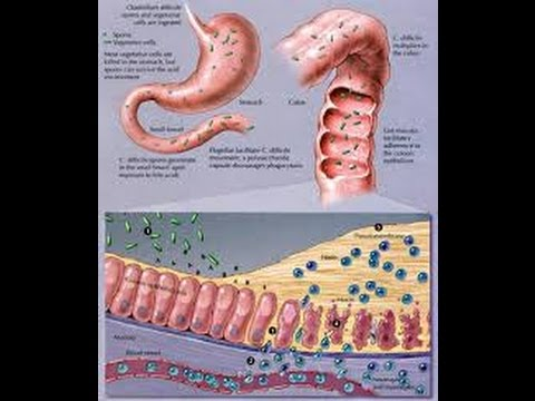 Clostridium Difficile Youtube