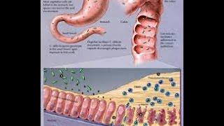clostridium tetani pathogenesis
