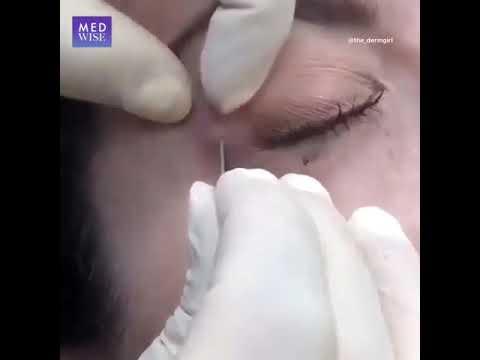 تظهر الكيسة الاحتباسية العرقية Hidrocystoma غالباً حول العنق والرأس وقد تظهر حول العين