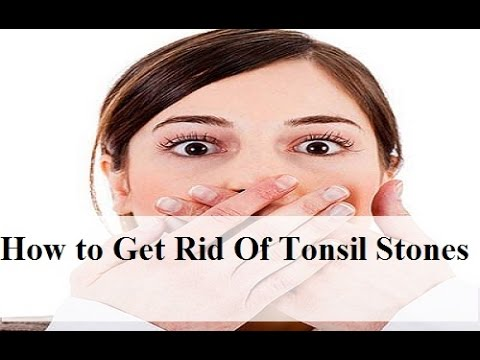 How to Get Rid of Tonsil Stones Fast ► In 3 Weeks