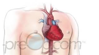 Coronaria de la enfermedad síntomas de nhs arteria