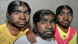 【奇病】狼男症候群により体中が毛に覆われた3姉妹 狼男症候群 検索動画 10