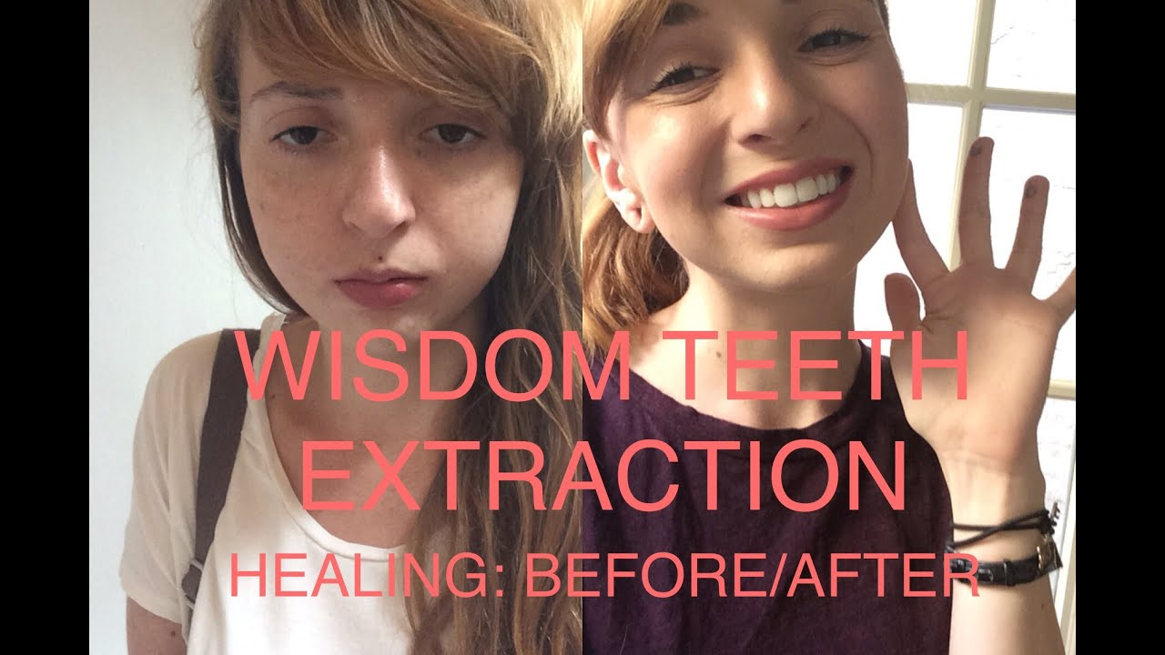 Wisdom Teeth Extraction Before And After Healing Process Youtube
