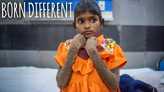 The Girl Who Is Turning To Stone | BORN DIFFERENT