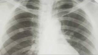 Salisbury Mesothelioma Attorneys Charlotte Asbestos Lawyers North Carolina