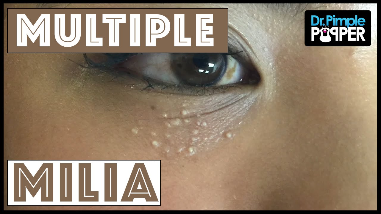 Milia 101: You're Not Just One in a Milium - The Pretty Pimple
