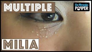 Multiple milia under the eyes