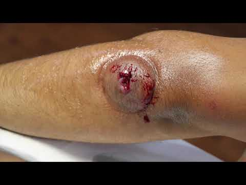 Cupping (Hijama) Therapy After WORM Comes Out From Insect Bite