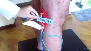 Anatomía venosa superficial pierna