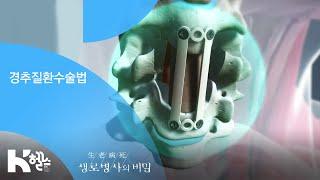 경추질환수술법 - (20190403_689회 방송) 고…