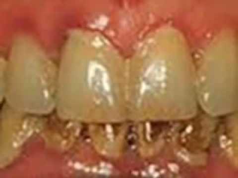 Luar Biasa 100 Ampauh Cara Membersihkan Karang Gigi Sendiri Tanpa