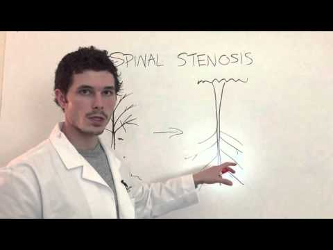 2 Main Types of Spinal Stenosis AND Why You Feel What You Feel