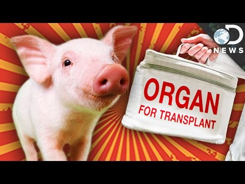 Could A Human Ever Survive With A Pig Heart?