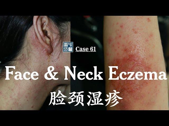 Face Ear Neck Elbow eczema 脸耳颈肘湿疹