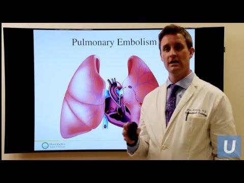 Deep Vein Thrombosis - John Moriarty, MD   UCLAMDCHAT Webinar