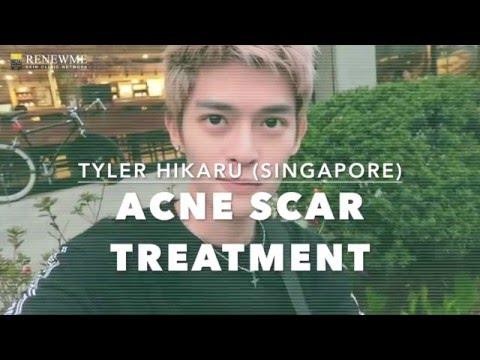 Renewme Skin Clinic Korea | Acne Scar Laser Treatment with Tyler Hikaru