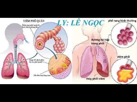 Viêm Phế Quản Phổi Mãn Tính, (Khó Thở ), Điều Trị Tây Y Không Đỡ ,Còn Cơ Hội Nào Cho BN Không