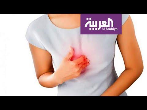 صباح العربية | التدخين والسمنة يعززان مشكلة الحرقة  - 13:00-2019 / 11 / 20
