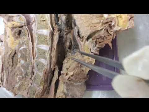 Nasopharynx, oropharynx and laryngopharynx - YouTube
