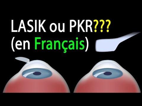 LASIK ou PKR? Comparaison des procédures, animation