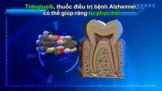 Thuốc điều trị Alzheimer có thể giúp răng sâu tự liền không cần trám