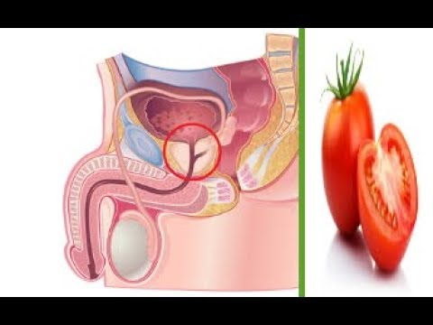 Natural Ways to Improve Prostate Health